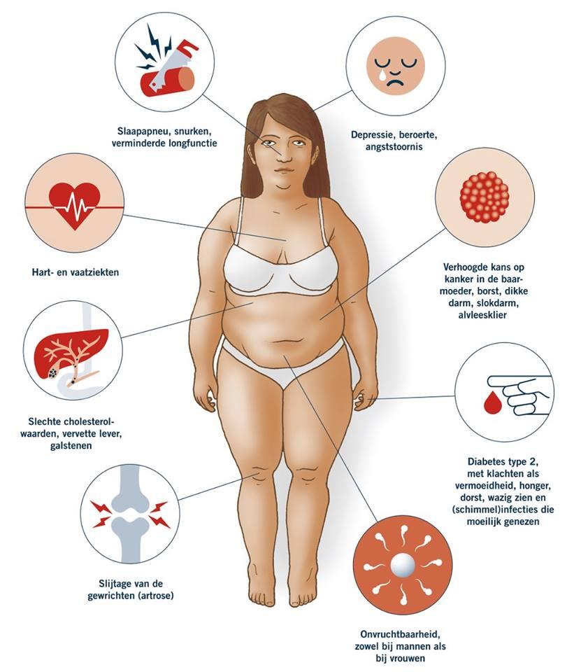 Oorzaken metabool syndroom